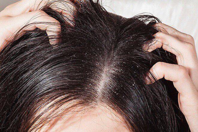 Nổi mụn trên đầu là bệnh gì & Cách chữa mụn nhọt trên đầu hiệu quả